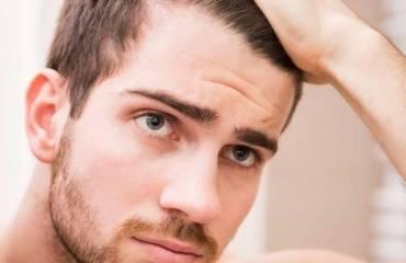 Frisur Mit Geheimratsecken Schön Kurze Seiten Langes top Haarschnitte
