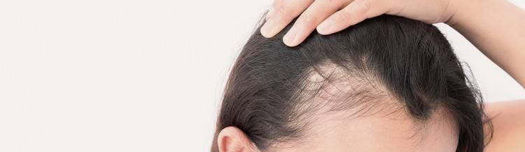 Frisuren Bei Haarausfall Frau Pretty Haarstylingtipps Männer Frisuren Bei Geheimratsecken so