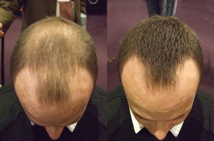 Kaschieren der Geheimratsecken mit mittellangen Haaren
