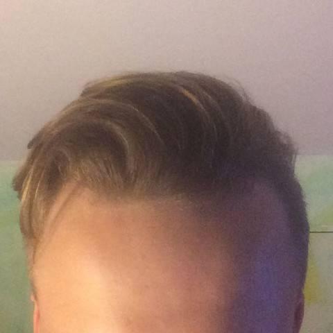 Die Übergänge von kurzem Haar und kahlen Stellen fallen so weit weniger auf