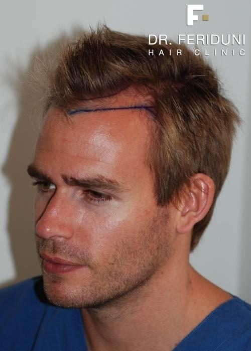 Frisur Mit Geheimratsecken Schön Unvergesslich Frisuren Für Runde Gesichter Frau